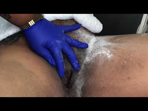 15 Minute BRAZILIAN: Sugaring Thick Coarse Hair | Esthetician Jaq Gibson