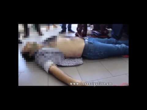 Սպանության փորձ՝ հիվանդասենյակում. կնոջ կյանքը հաջողվել է փրկել (Տեսանյութ)