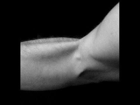 comment bien soigner une tendinite au coude
