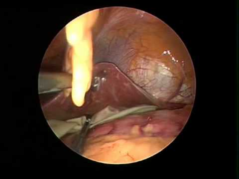 Single Skin Incision (SPA) Hepatic Sling Insertion
