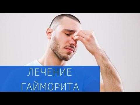Хирургическое лечение одонтогенного синусита в ЕМС