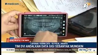 Video Tim DVI Terima Data Gigi, Rambut dan DNA untuk Identifikasi Korban Lion Air MP3, 3GP, MP4, WEBM, AVI, FLV November 2018
