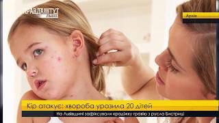 Випуск новин на ПравдаТУТ Львів 14 листопада 2017