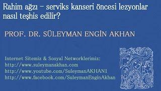Rahim ağzı - serviks kanseri öncesi lezyonlar nasıl teşhis edilir? - Prof. Dr. Süleyman Engin Akhan