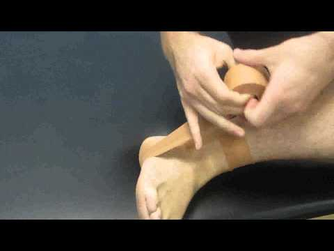 55. Physiotherapy North Sydney: Ankle Strapping and Taping