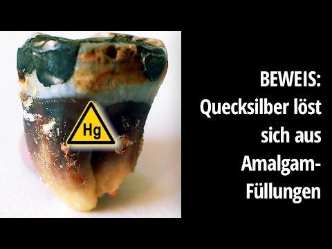 Amalgamentfernung: Quecksilber löst sich aus Amalgam (Deutsche Übersetzung)