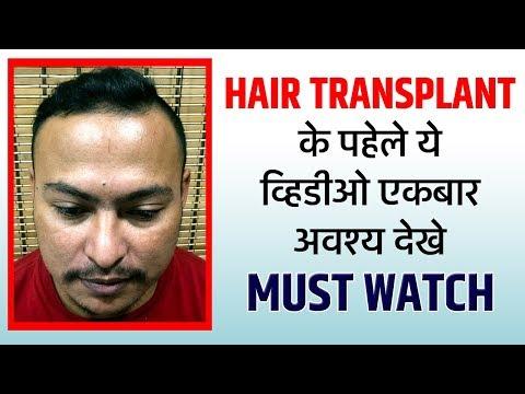 Hair Transplant Testimonial | New Roots Hair Clinic_A plasztikai sebészet kulisszatitkai. A legmodernebb eljárások, és orvosi hibák. Szilikon völgy