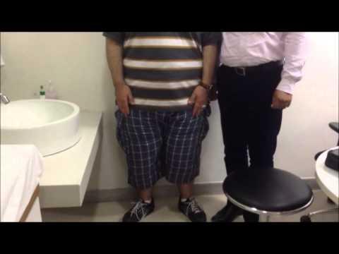 Weight Loss Surgery India