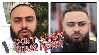 Video The perfect Haircut for RECEDING Men! MP3, 3GP, MP4, WEBM, AVI, FLV November 2018