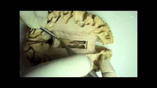 NEUROANATOMIA 2.0: DISECCION DE FORNIX Y VENTRICULOS LATERALES
