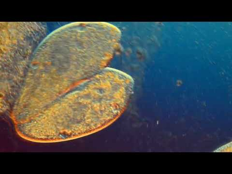Sex In The Unseen World Hd Microscopic Image Of Paramecium In Conjugation Iic Lighting X Image