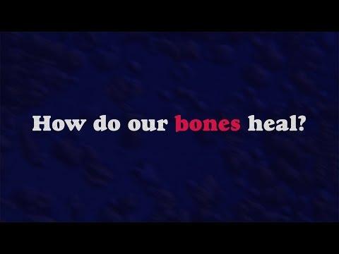 How Bones Heal