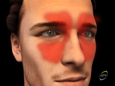 Sinusitis Treatment - nasodren.com, Mode of Action Video for Nasodren sinusitis treatment therapy