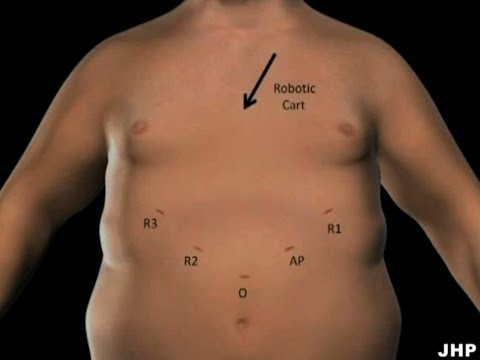 Robotic Mini Gastric Bypass