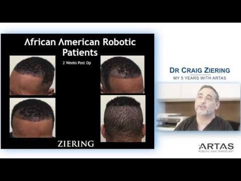 "Dr. Craig Ziering On ""My Five Years Using ARTAS"""