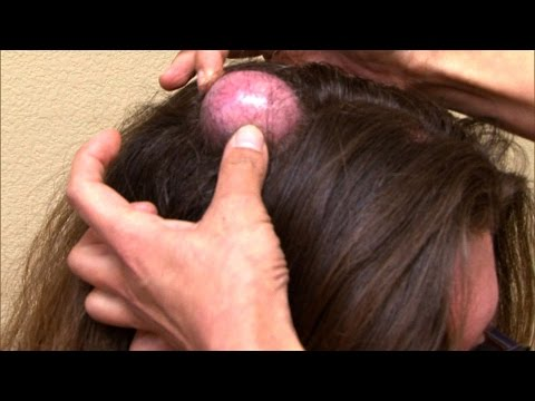 Woman With Huge Cyst On Her Head Finally Has It Removed