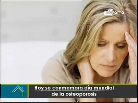 Hoy se conmemora día mundial de la osteoporosis