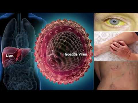 HOW TO CURE HEPAtitis c   treamtent of hepatitis c