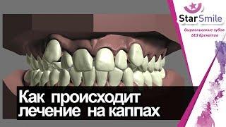 Как элайнеры выпрямляют зубы. На примере скученности зубов