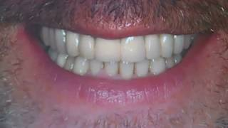 Replacing Missing Teeth With Dental Bridges