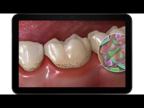 <a href='/Info/?id=82337' >Рівняни запитують: Що таке зубний камінь? [ВІДЕО]</a>