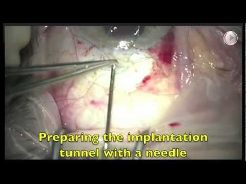 Ex PRESS shunt implantation, step by step. A quick overview. Glaucoma surgery, fornix based.