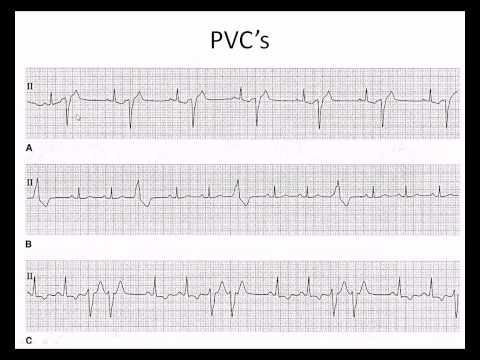 Easy EKG: Premature Ventricular Contractions and Atrial Fibrillation