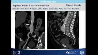Video Demonstration: Magellan Live Patient Case at TCT 2013- Hansen Medical MP3, 3GP, MP4, WEBM, AVI, FLV Juli 2018