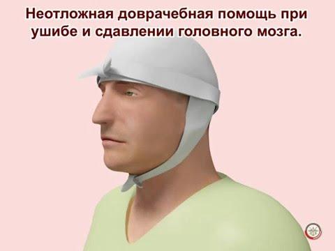 Основные проявления черепно-мозговой травмы