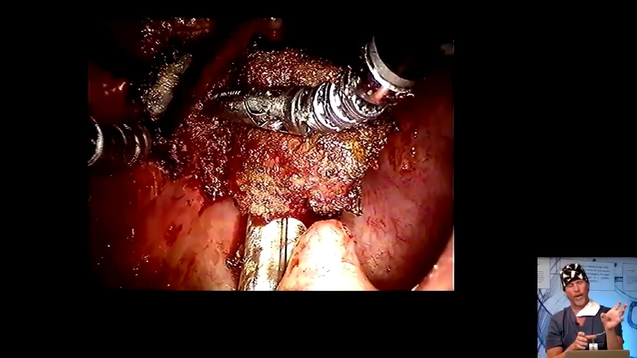 Webinar: TORS Mastery of Dissection