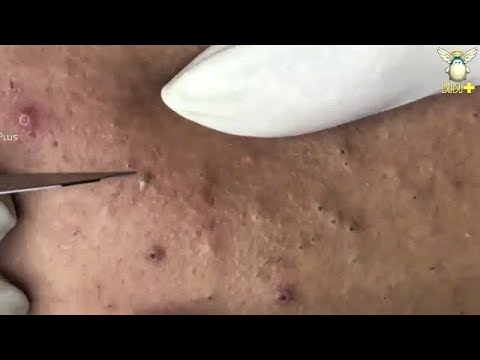 How To Remove Acne For Clear Skin - Blackheads Removal On The Face with Relaxing Music 27563!