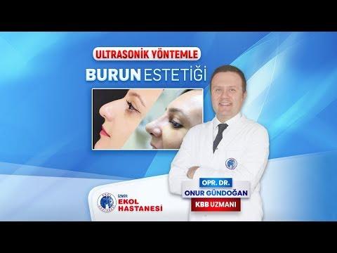 Burun Estetiği - Opr. Dr. Onur Gündoğan - İzmir Ekol Hastanesi