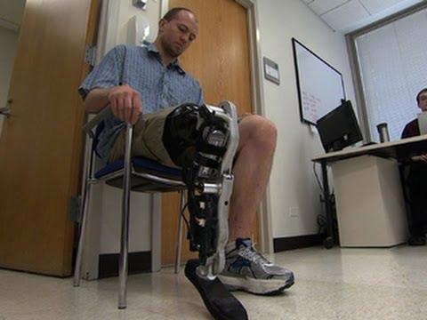 la gamba bionica capace di leggere nel pensiero