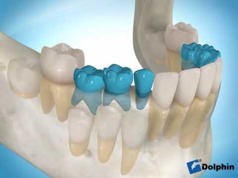 mover dientes de leche retenidos