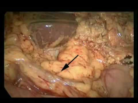 Laparoscopic Distal Stomach Excision And D1 Lymph Nodes Removal Due To Adenocarcinoma