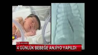 Dört Günlük Bebeğe Anjiyo Yapıldı!