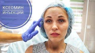 Инъекции Ксеомин в область лба, межбровья и уголков глаз