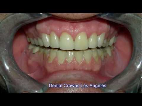 Dental Crowns Los Angeles