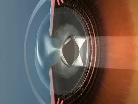 Вторичная катаракта - причины, диагностика и лечение