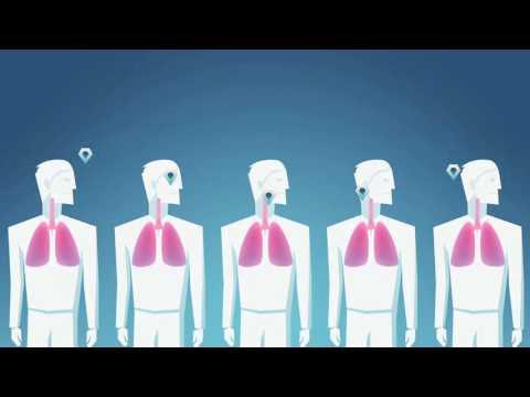 Rethinking Asthma