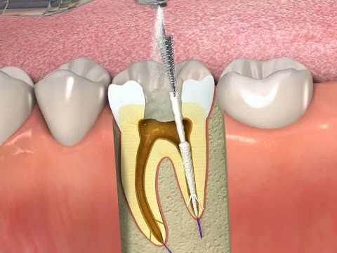 ProPoint- How to obturate a root canal with SmartSeal
