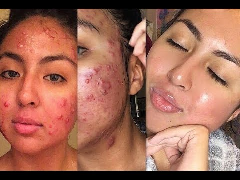My Journey on Isotretinoin (Accutane) || From Severe Cystic Acne to Clear Skin
