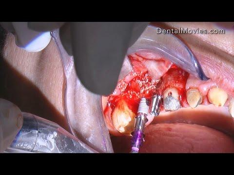 External sinus elevation