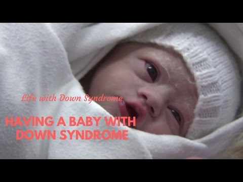 Watch video Having a Baby with Down Syndrome