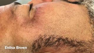 Thank you so much for your patience with us and your support.Here is the final video of this gentleman extractions. we didnt record the extraction of the milia on his brow but we did do it.  He took me over 2 hours to complete, just didnt record all of it. I love you guys and I truly appreciate your continued words of encouragement and lovely comments. Sincerely Enilsa!