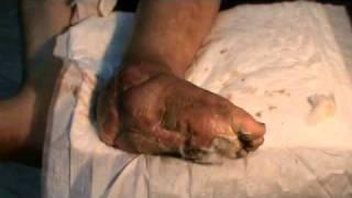 القدم السكري الحاج ربيع والبكتيريا آكلة لحوم البشر