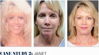 KPS Case Study 2: Janet (Ponytail Facelift™ Technique)