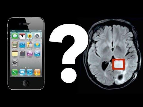 Způsobuje používání mobilů nádory mozku?