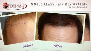 John Kahen MD Patients Before And After video/ Beverly Hills Hair Restoration