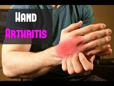 Fast Treatment for Hand Arthritis ~ Self Massage!